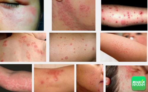 Dị ứng do thuốc thường biểu hiện ra bên ngoài da.