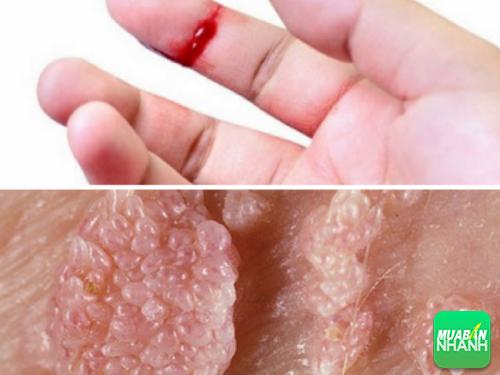 Vết thương hở là môi trường dễ lây lan độc tố sùi mào gà.