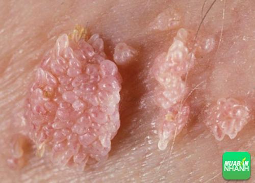 Hiện nay vẫn chưa có phương pháp điều trị dứt điểm bệnh sùi mào gà.