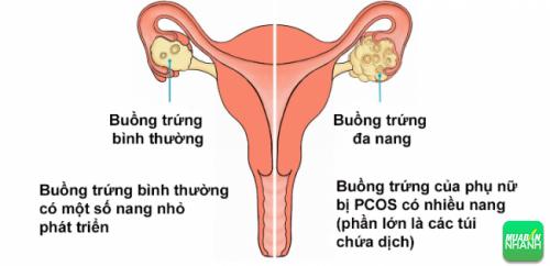 Hội chứng buồng trứng đa nang ảnh hưởng quá trình bài tiết hormone khiến chậm kinh