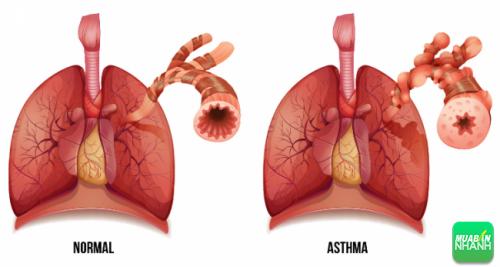 Sự khác nhau của người bình thường (trái) và người mắc bệnh hen phế quản (phải)
