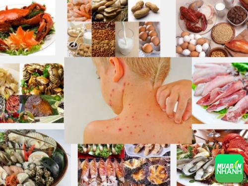Dị ứng do thực phẩm có tỉ lệ phổ biến hơn các loại dị ứng khác.