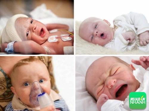 Sớm nhận biết bệnh suy hô hấp để bảo vệ tính mạng con mình.