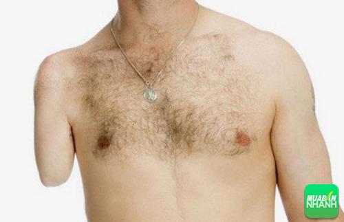 Rối loạn nhận dạng cơ thể thuộc một trong những chứng bệnh kinh dị nhất thế giới.