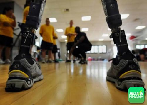 Năm 2000, Karl (người Mỹ) bị mắc chứng BIID, anh ngâm chân trong đá lạnh đến mức mà khi nhập viện, các bác sĩ không còn lựa chọn nào khác là phải cắt chân.
