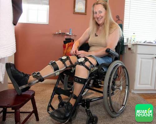 Chloe Jennings-White, người phụ nữ khỏe mạnh thích bị liệt.