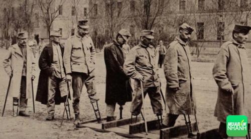 Trong lịch sử đã xảy ra những vụ tự cắt chân vô cùng rùng rợn.