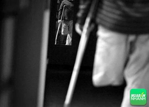 Dấu hiệu giúp bạn nhận biết bệnh rối loạn nhận dạng toàn vẹn cơ thể (BIID), 357, Phương Thảo, Cẩm Nang Sức Khỏe, 15/11/2016 14:39:26
