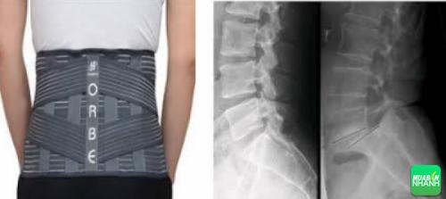 Cách tốt nhất nên chọn đai lưng cột sống phù hợp với tình trạng cơ thể.