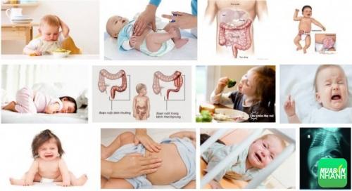 Tắc ruột (lồng ruột) ở trẻ em: Những dấu hiệu nhận biết và các bước sơ cấp cứu cần thiết