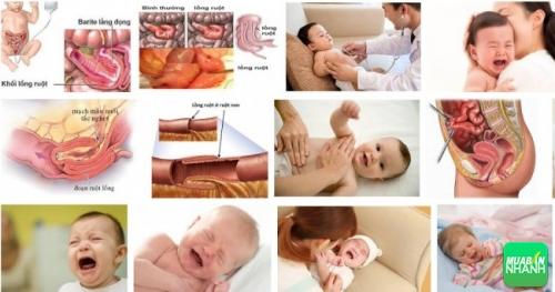 Sự nguy hiểm của chứng tắc ruột (lồng ruột) ở trẻ em