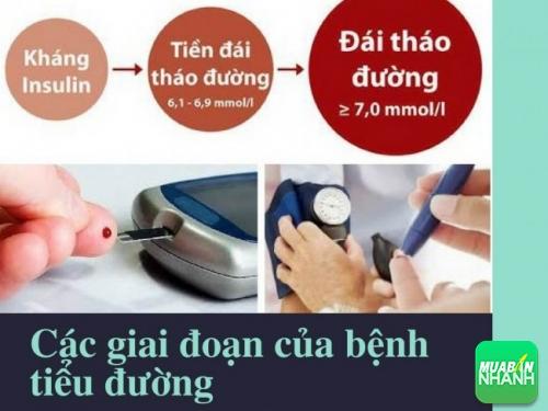 Các giai đoạn của bệnh tiểu đường tuýp 2