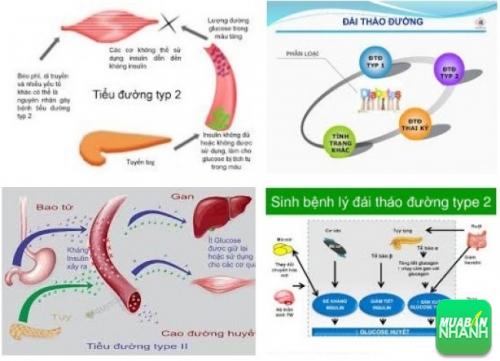 Bệnh tiểu đường type 2 có nguy hiểm không?