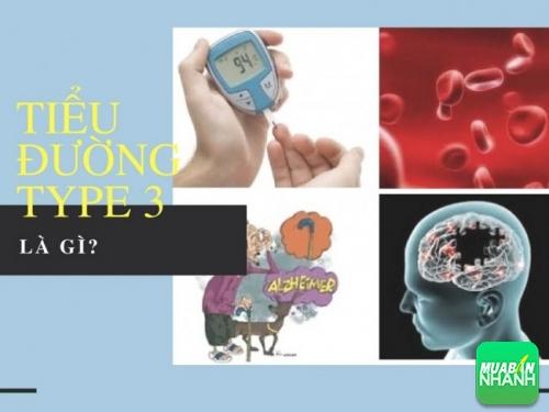 Bệnh tiểu đường type 3 là gì?