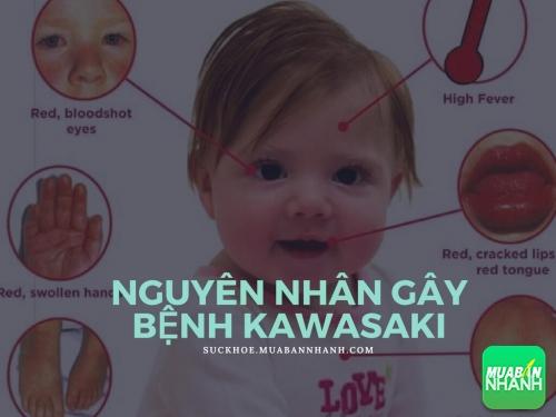 Nguyên nhân gây bệnh Kawasaki, 480, Phương Thảo, Cẩm Nang Sức Khỏe, 30/05/2017 09:18:27