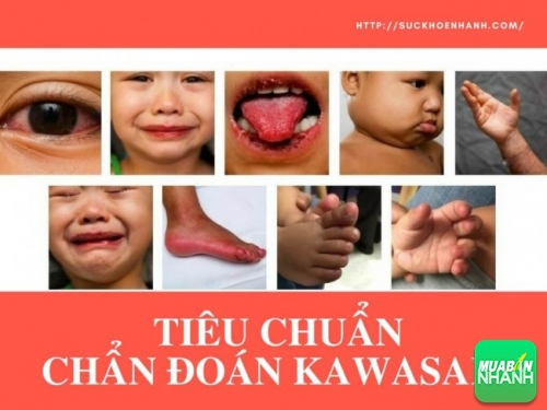 Tiêu chuẩn chẩn đoán Kawasaki