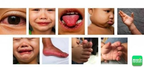 Biểu hiện bệnh Kawasaki ở trẻ em dễ nhầm lẫn với nhiều bệnh khác.