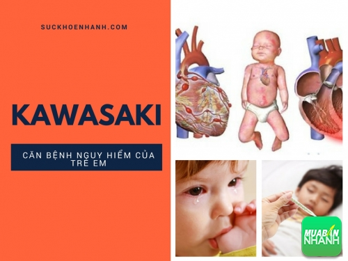 Lời tự sự của bà mẹ có con mắc kawasaki - những nhầm lẫn tai hại, 482, Phương Thảo, Cẩm Nang Sức Khỏe, 30/05/2017 09:17:04