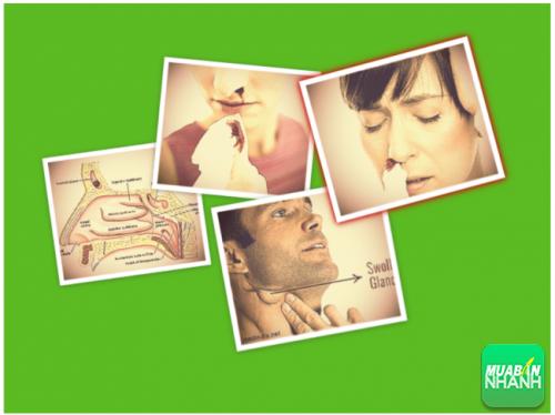 ung thư vòm họng có triệu chứng gì