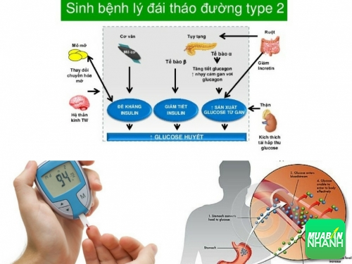 Tiểu đường tuýp 2 (type 2) là gì?, 519, Phương Mai, Cẩm Nang Sức Khỏe, 15/08/2017 11:14:58