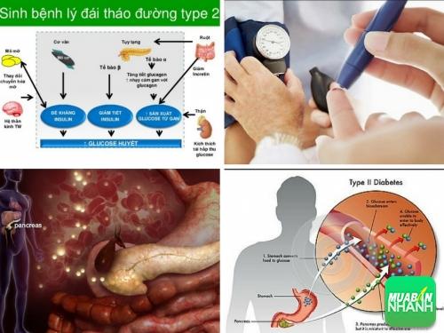 Tiểu đường tuýp 2 (type 2) là nặng hay nhẹ, 523, Phương Mai, Cẩm Nang Sức Khỏe, 21/08/2017 15:08:07