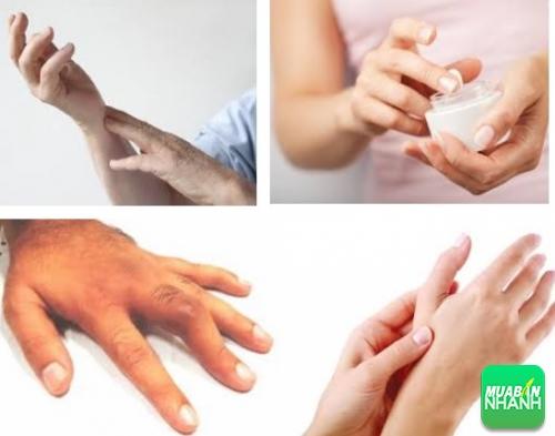 Đau đầu ngón tay - Dấu hiệu cảnh báo bệnh nguy hiểm, 547, Phương Thảo, Cẩm Nang Sức Khỏe, 01/02/2018 00:03:18