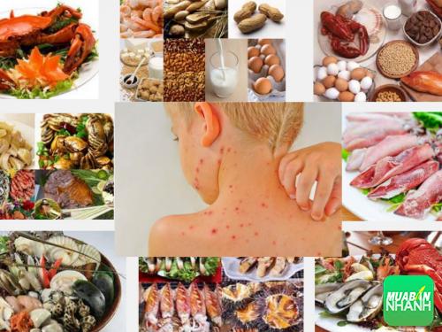 Bạn có biết nguyên nhân gây ra dị ứng thực phẩm, 345, Phương Thảo, Cẩm Nang Sức Khỏe, 08/11/2016 14:56:18