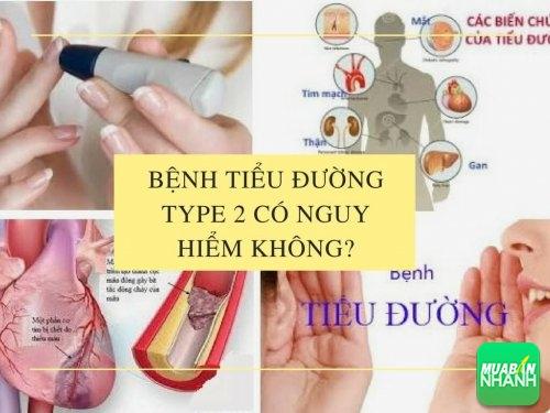 Bệnh tiểu đường type 2 có nguy hiểm không?, 462, Mai Tâm, Cẩm Nang Sức Khỏe, 04/05/2017 11:16:36