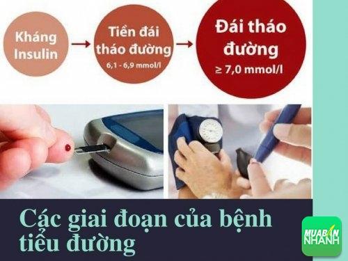 Các giai đoạn của bệnh tiểu đường tuýp 2, 461, Mai Tâm, Cẩm Nang Sức Khỏe, 04/05/2017 09:50:39