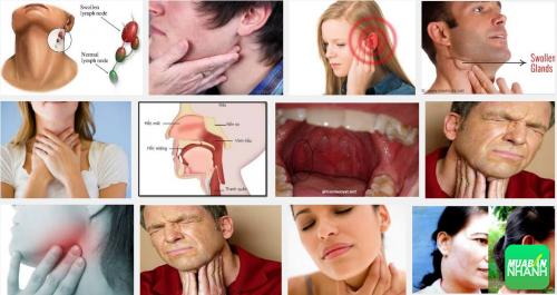 Dễ dàng nhận biết ung thư vòm họng qua các biểu hiện, 29, Phương Thảo, Cẩm Nang Sức Khỏe, 22/09/2016 10:27:35