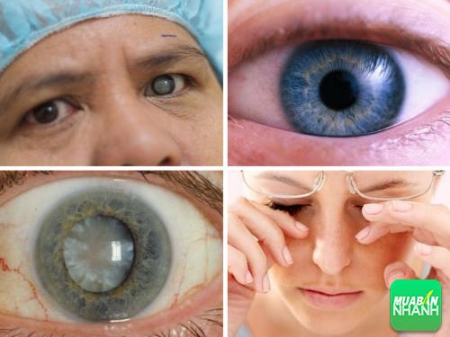 Những loại bệnh về mắt mà người cao tuổi dễ mắc phải, 274, Phương Thảo, Cẩm Nang Sức Khỏe, 26/10/2016 15:43:56