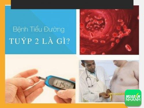 Tiểu đường tuýp 2 là gì?, 460, Mai Tâm, Cẩm Nang Sức Khỏe, 03/05/2017 17:18:05